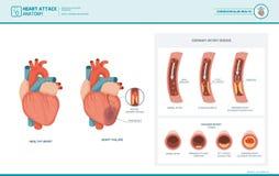 Anatomie van een hartaanval stock illustratie