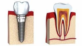 Anatomie van gezonde tanden en tandimplant in kaakbeen stock footage