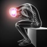 Anatomie van hoofdpijn in mannetje vector illustratie