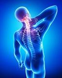 Anatomie von männlichen Nackenschmerzen Stockfoto