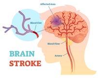 Anatomisch vector de illustratiediagram van Brain Stroke, regeling vector illustratie