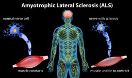 Anatomy of amyotrophic lateral sclerosis stock illustration