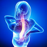 Anatomy of female back pain Royalty Free Stock Image
