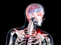 Anatomy - Headache Royalty Free Stock Images
