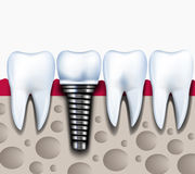 Anatomy of healthy teeth and dental implant in jaw bone. Royalty Free Stock Image