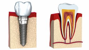 Anatomy of healthy teeth and dental implant in jaw bone stock footage
