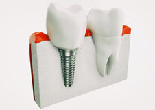 Anatomy of healthy teeth and dental implant in jaw bone - 3d rendering stock illustration