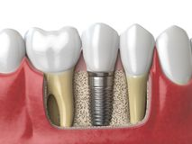Anatomy of healthy teeth and tooth dental implant in human dentu Royalty Free Stock Photos