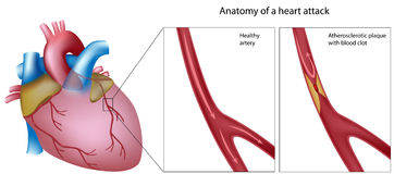 Anatomy of heart attack. Heart anatomy with and without cholesterol plaque in coronary artery, eps8 Stock Photos