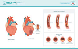 Anatomy of a heart attack. Heart attack and atherosclerosis medical illustration: healthy and damaged heart, blood vessel section with fatty deposit accumulation stock illustration