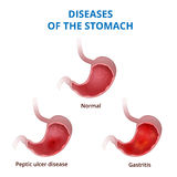 Anatomy of the human healthy and unhealthy stomach Royalty Free Stock Image