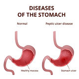 Anatomy of the human healthy and unhealthy stomach Royalty Free Stock Photography