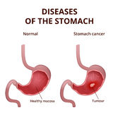 Anatomy of the human stomach Royalty Free Stock Photography