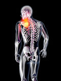 Anatomy - Hurting Shoulder Stock Image