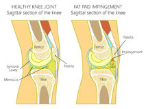 Anatomy of the knee_Fat pad impingement due to hyperextension. Vector illustration of a healthy human knee joint and unhealthy knee with Hoffa`s fat pad Stock Photography
