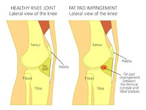 Anatomy of the knee_Fat pad impingement syndrome. Vector illustration of a healthy human knee joint and unhealthy knee with Hoffa`s fat pad impingement syndrome Stock Images