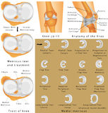 Anatomy of the Knee. Human Knee Joint. Anatomy of the Knee. Menisci of the knee. Medial meniscus. Lateral meniscus. Meniscus tear and surgery Royalty Free Stock Images