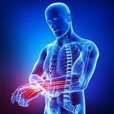 Anatomy of male hand pain. 3d art illustration of Anatomy of male hand pain Stock Photography