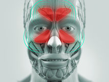 Anatomy model showing sinus infection. Stock Photo