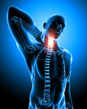 Anatomy of Neck pain in blue. 3d rendered medical x-ray illustration of transparent  X-ray Anatomy of Neck pain in blue  background Royalty Free Stock Photography