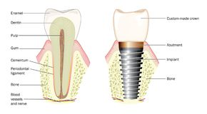Anatomy of a tooth and dental implant. Normal tooth anatomy and custom-made crown with metal implant stock illustration