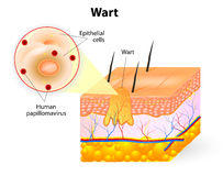 Anatomy of Wart. Wart anatomy. Warts are benign skin growths that appear when a human papillomavirus (HPV) infects the top layer of the skin royalty free illustration