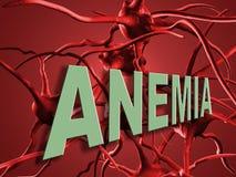 anemia Fotografia Stock Libera da Diritti