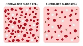 Anemia  / blood anatomy concept. / white background Stock Images