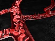 Anemia, célula falciforme y glóbulo rojo normal, ejemplo 3d fotos de archivo