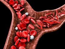 Anemia da célula falciforme, ilustração 3D que mostra o vaso sanguíneo com crescente normal e deformado ilustração royalty free