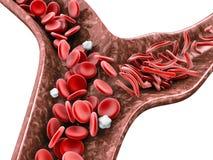 A anemia da célula falciforme, ilustração 3D que mostra o vaso sanguíneo com crescente normal e deformado isolou o branco ilustração do vetor