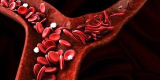 Anemia da célula falciforme, mostrando o vaso sanguíneo com crescente normal e deformated Imagens de Stock