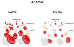 Anemia Diagram Stock Photos