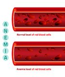 Anemia level of blood cells. Normal level of red blood cells in comparison with iron deficiency anemia level. Medical and healthcare concept. Vector illustration Vector Illustration