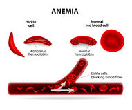 Anemia. Sickle cell and normal red blood cell Stock Image