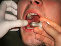 Anestesia imagen de archivo libre de regalías