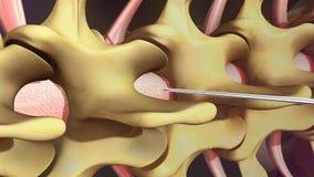 Anesthésie spinale illustration de vecteur