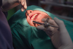 Anesthesia for tooth extraction by the dentist. Dentistry in hospital. Anesthesia for tooth extraction by the dentist. Dentistry in hospital stock photography