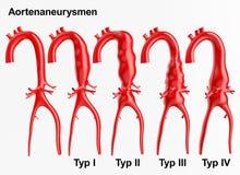 Aneurisma - het 3D teruggeven vector illustratie