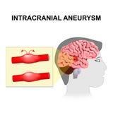 Aneurisma intracranico aneurisma del cervello o cerebrale illustrazione di stock