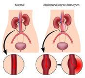 Aneurysm aórtico abdominal Imagen de archivo