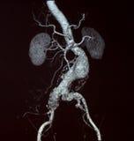 Aneurysm aórtico abdominal, CT Fotos de archivo libres de regalías