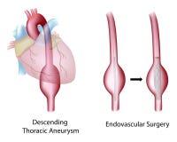 Aneurysm aortico toracico Fotografie Stock
