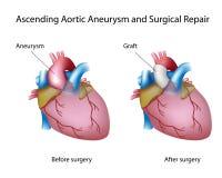 Aneurysm aortique croissant Images libres de droits
