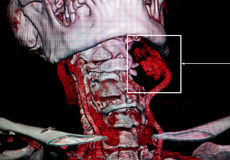 Aneurysm carotid aretery. CT-scan reconstruction. The CT-scan 3-D reconstruction is studying the aneurysm of the left carotid artery and human body anatomy Royalty Free Stock Photo