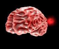 Aneurysm cerebral, cabeza del cerebro ilustración del vector