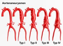 Aneurysm - 3D rendering Royalty Free Stock Images