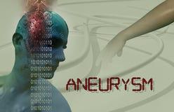 aneurysm de cerveau Photographie stock