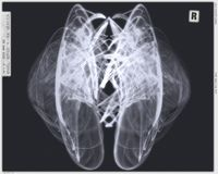 Angel Wings X-ray Version Stock Images