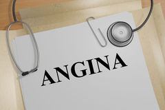Angina - medical concept Stock Images